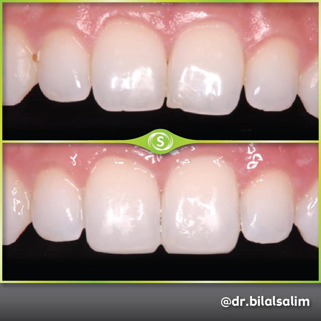 Composite Bonding - Dr. Bilal Salim