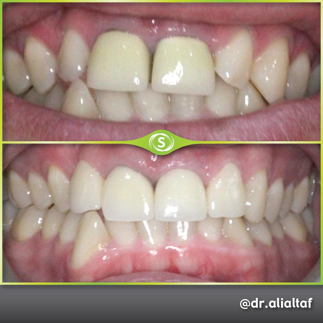 Dental Crowns - Dr. Ali Altaf