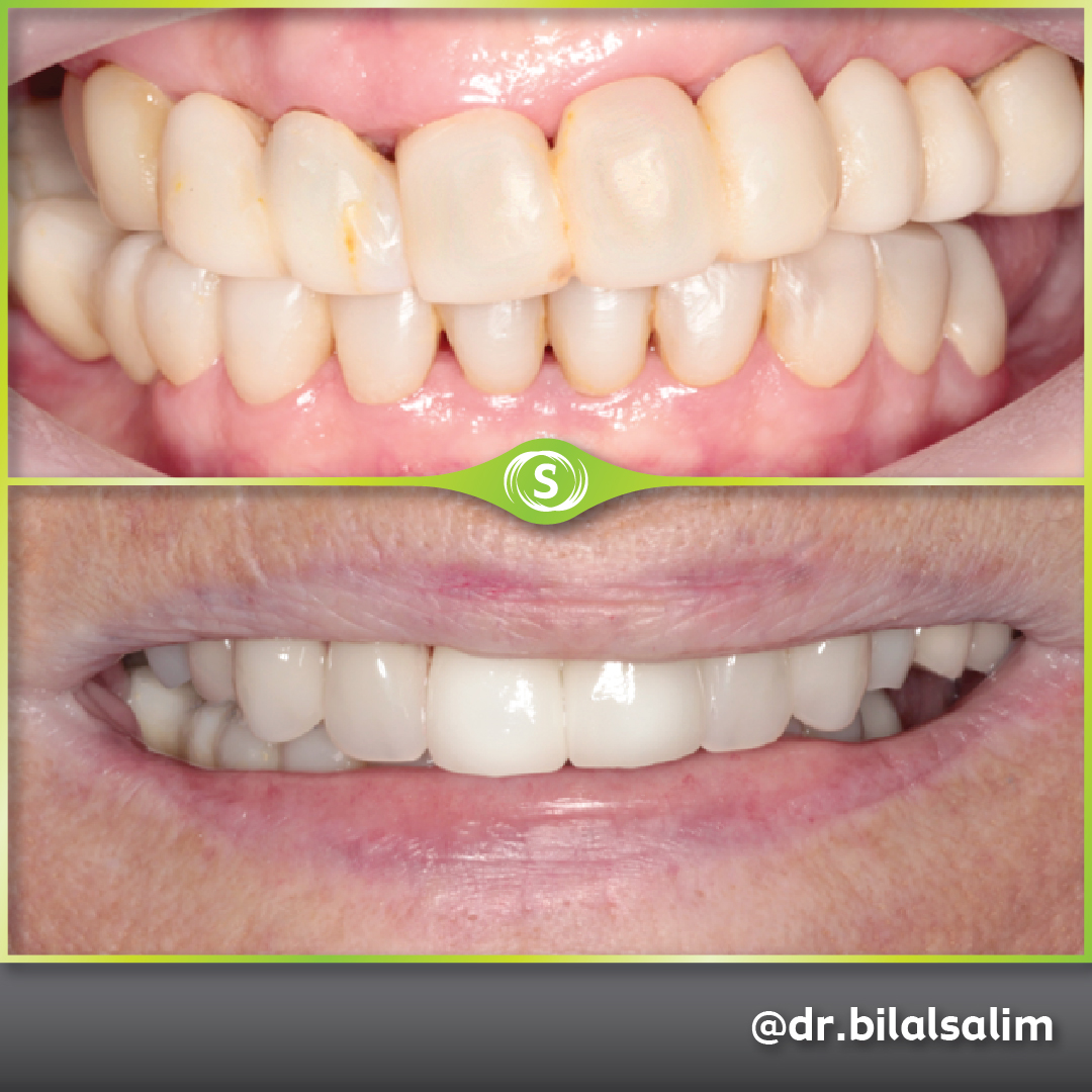 Dentures and Dental Crowns - Dr. Bilal Salim
