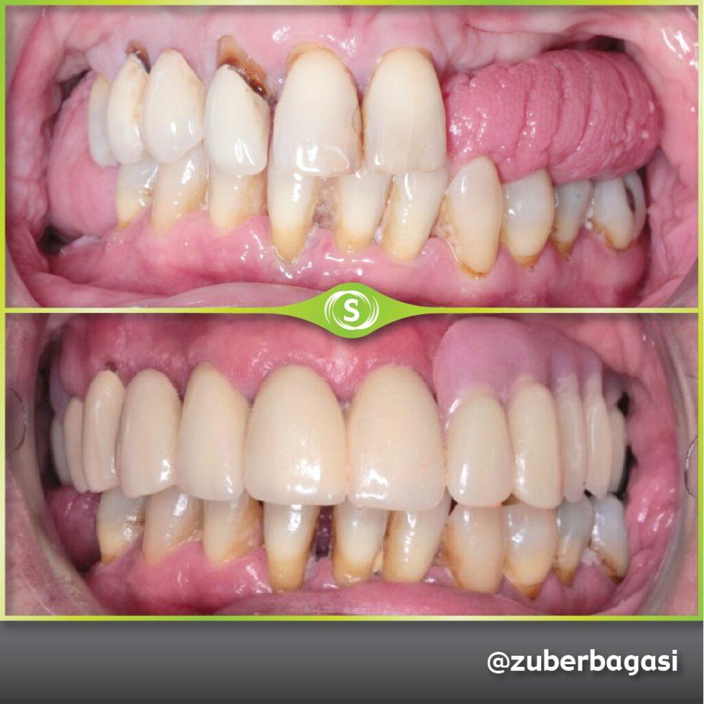 B&A Dentures ZB 1a-min