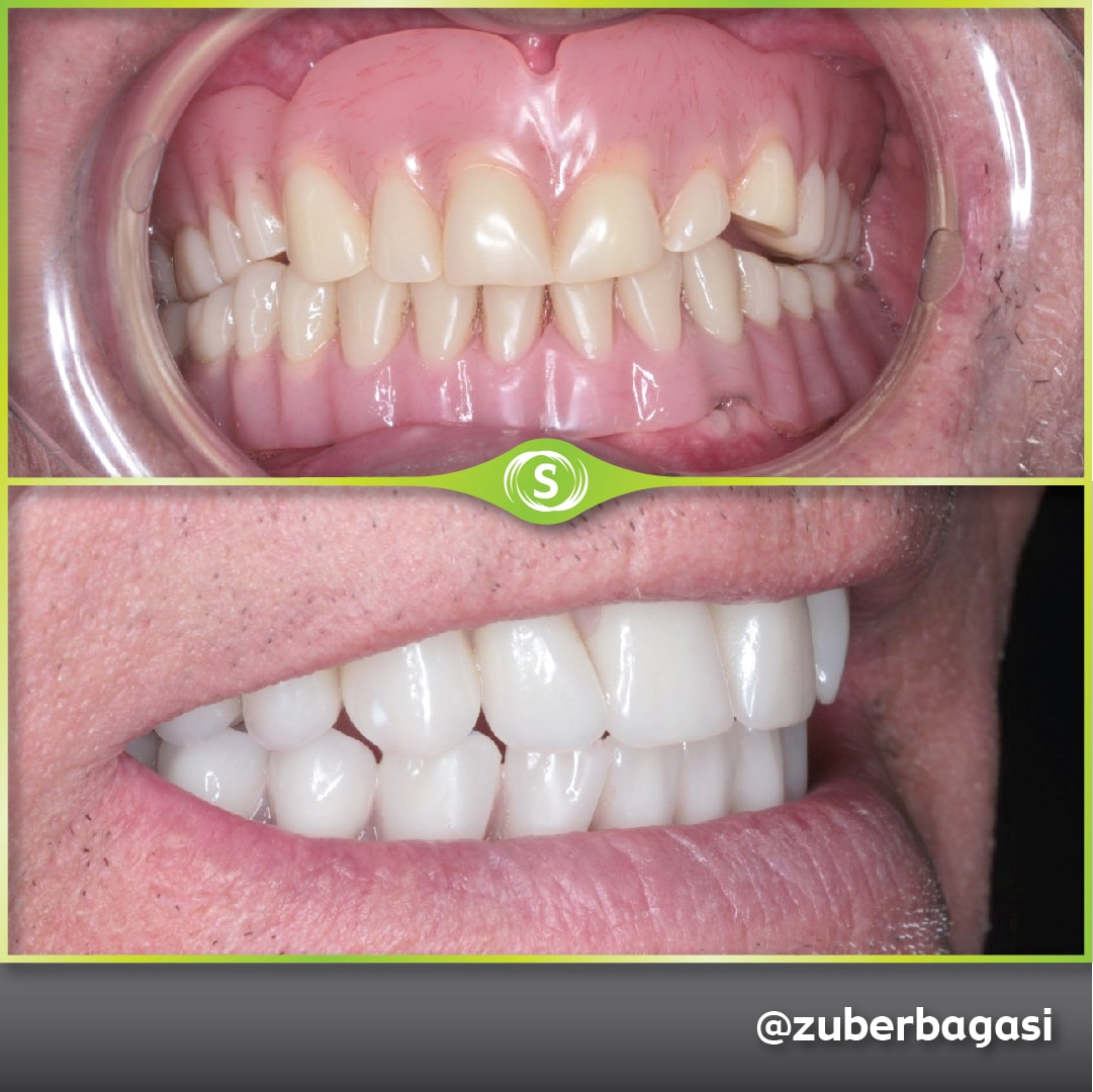 https://synergydental.org.uk/before-and-after/case-study-same-day-implants-case-study/