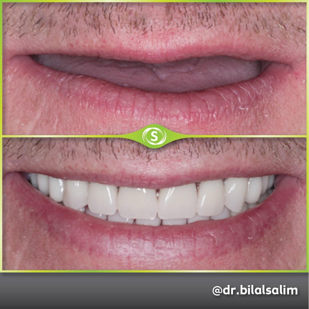 B&A Gold Acrylic Dentures BS-min