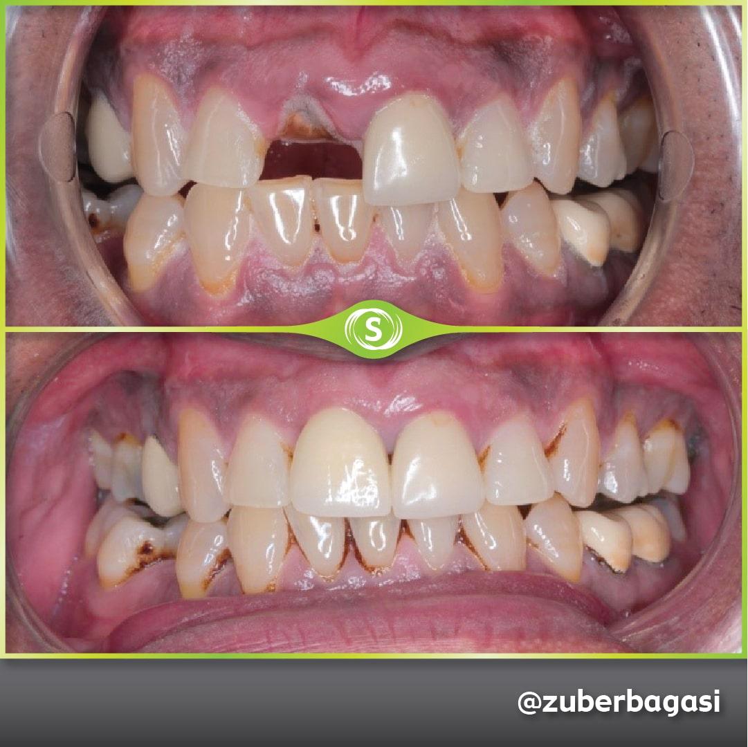 Dental Implants - Single Front Implant - Dr. Zuber Bagasi