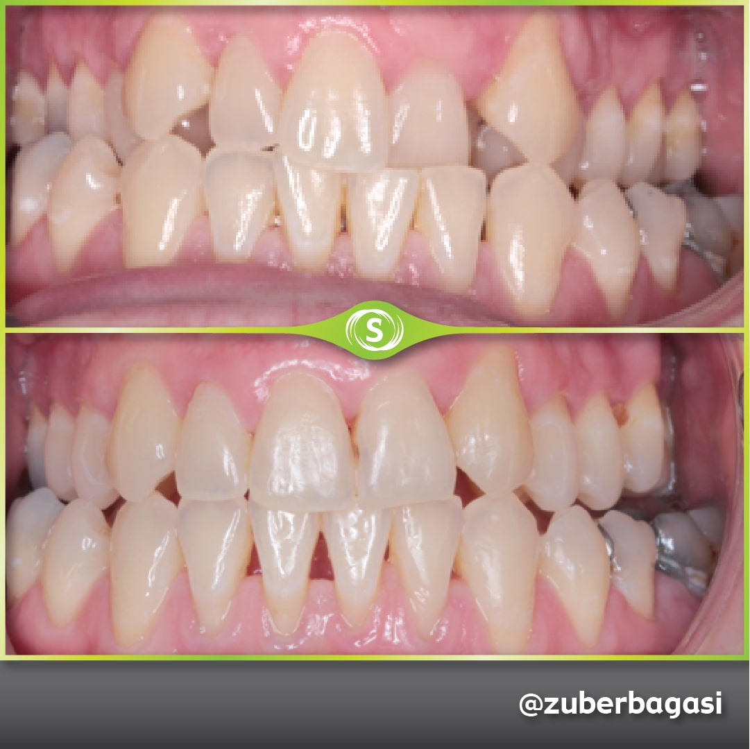 https://synergydental.org.uk/before-and-after/invisalign%e2%93%87-clear-braces-case-11-3/