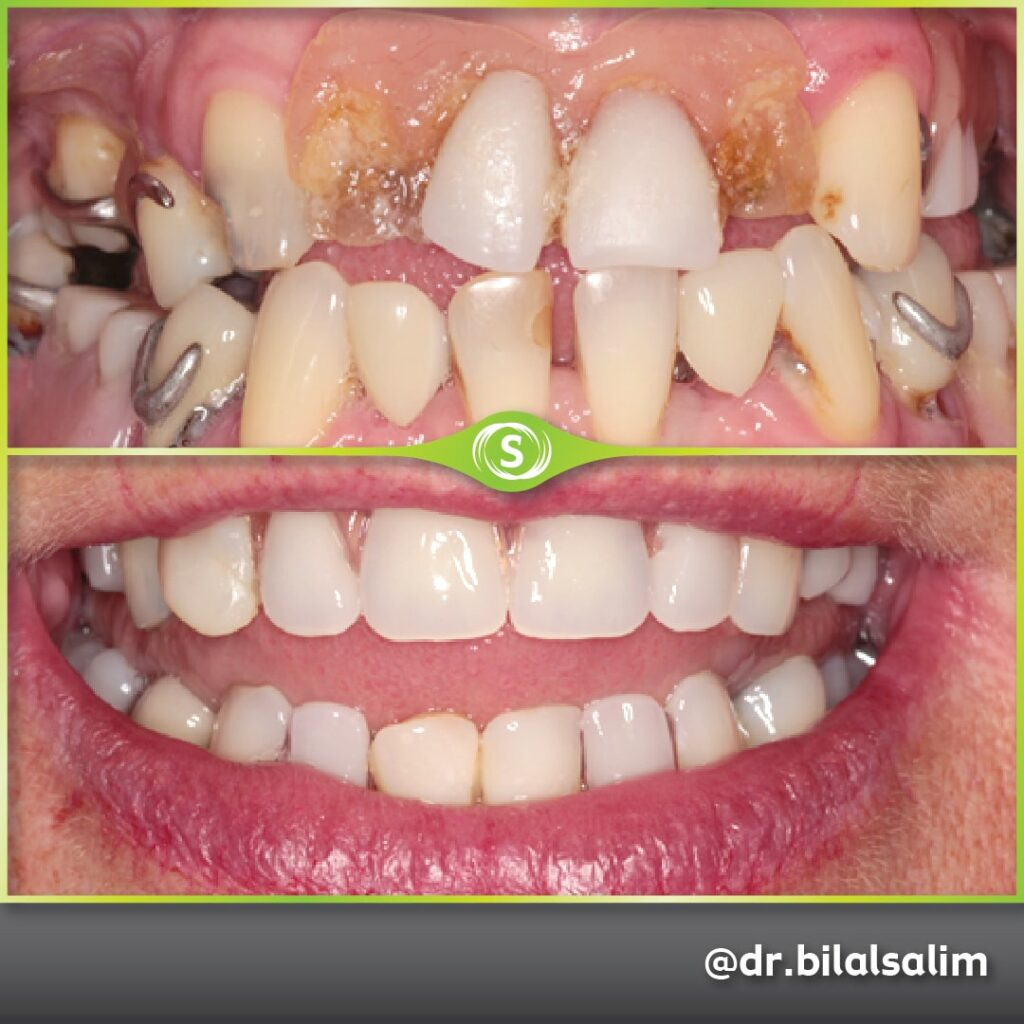 Composite Bonding, Valplast Denture and Teeth Whitening - Dr. Bilal Salim