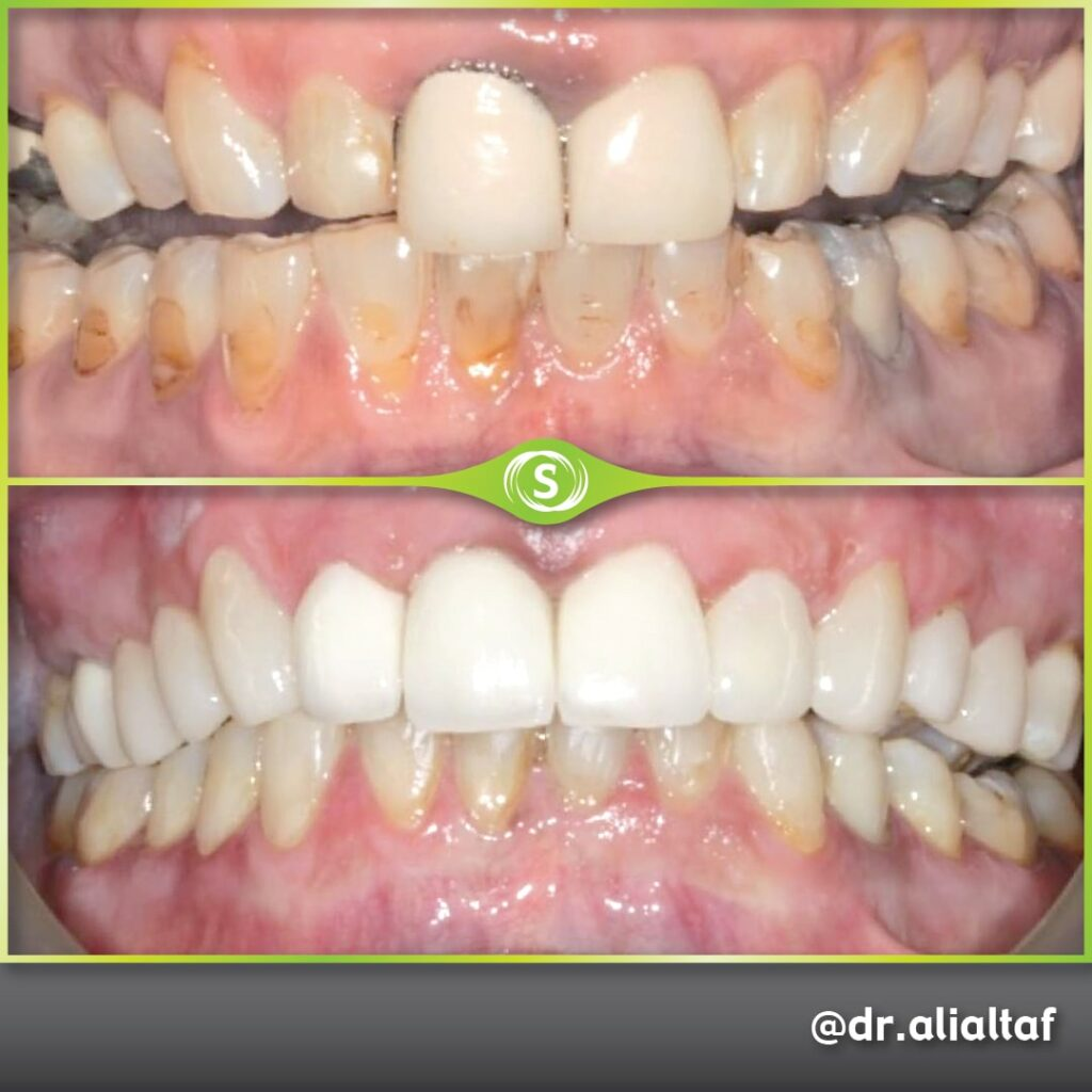 Composite Bonding Veneers - Dr. Ali Altaf