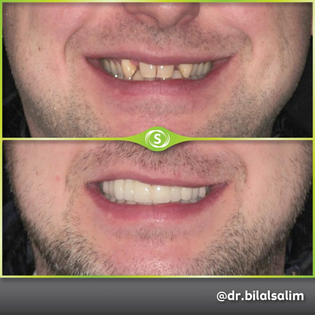 Dental Bridge, Veneers and Teeth Whitening - Dr. Bilal Salim