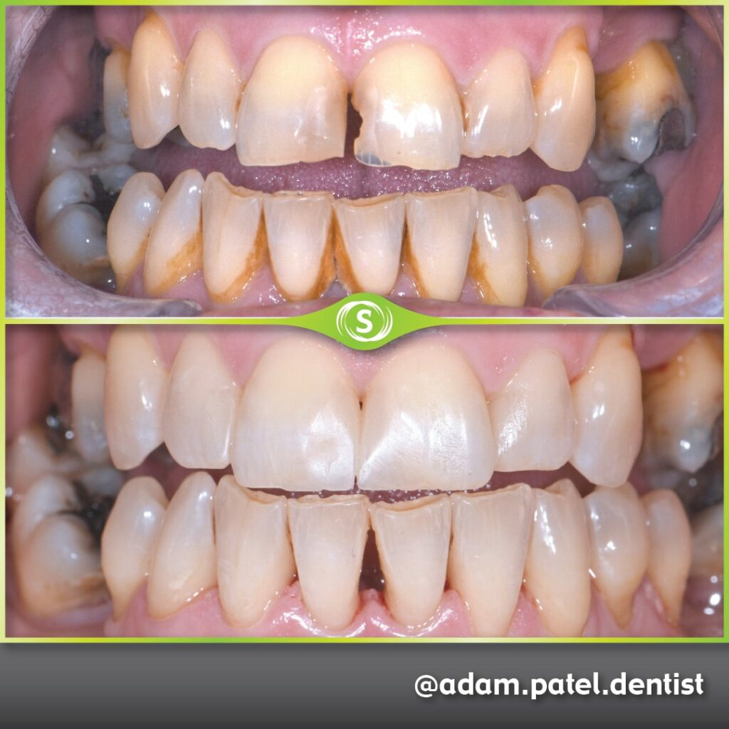 Cosmetic Dentistry - Dr. Adam Patel