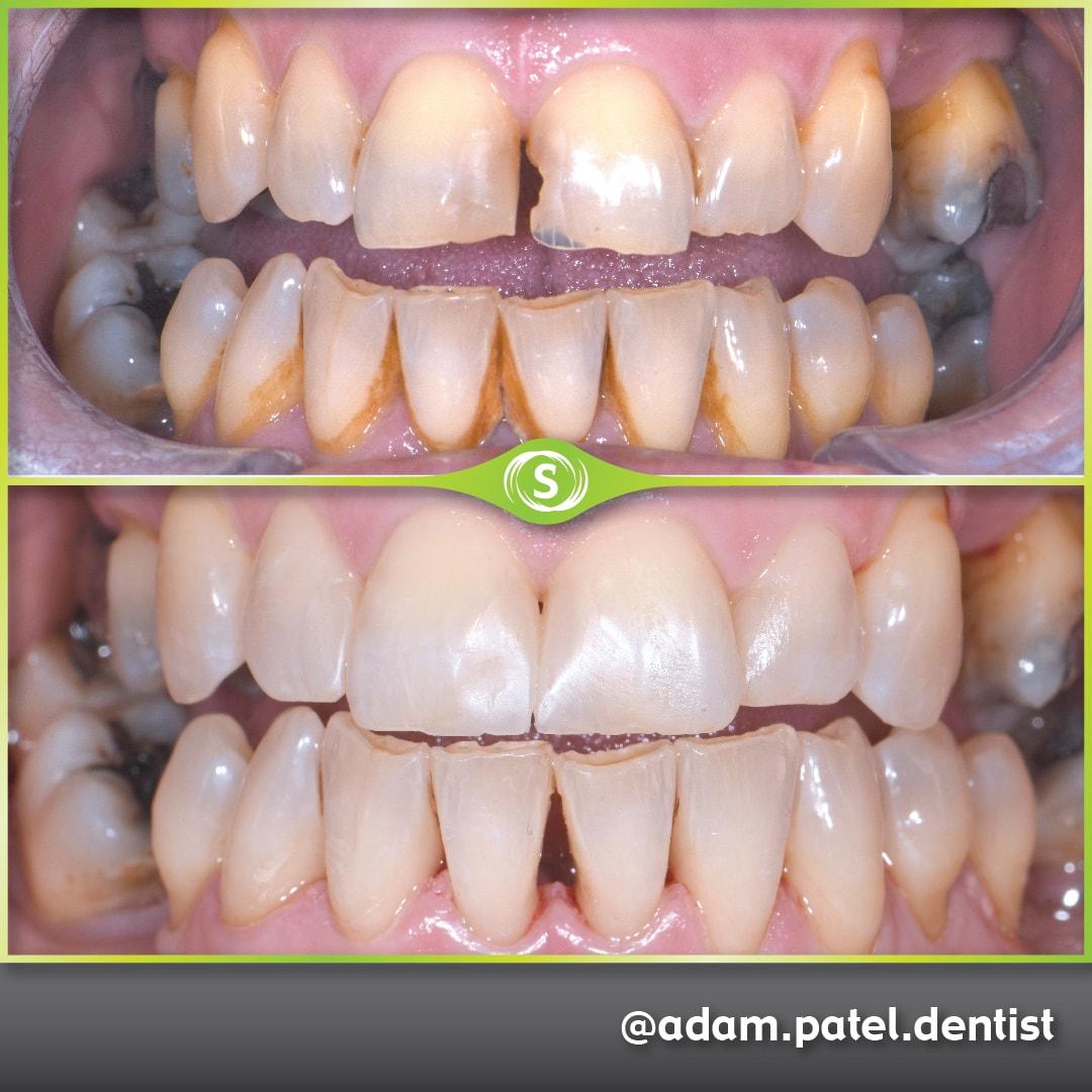 Cosmetic Dentistry - Dr. Adam Patel