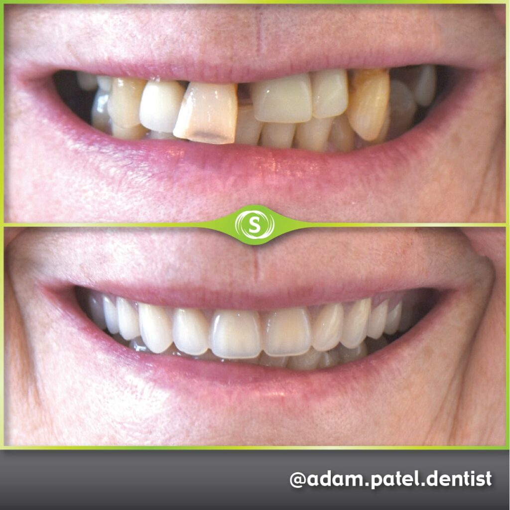 B&A Dentures AP-min