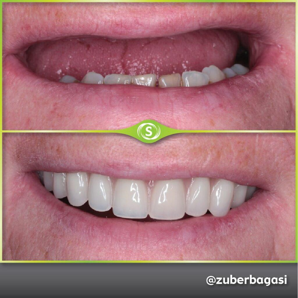 B&A FSD Implants ZB-min (1)