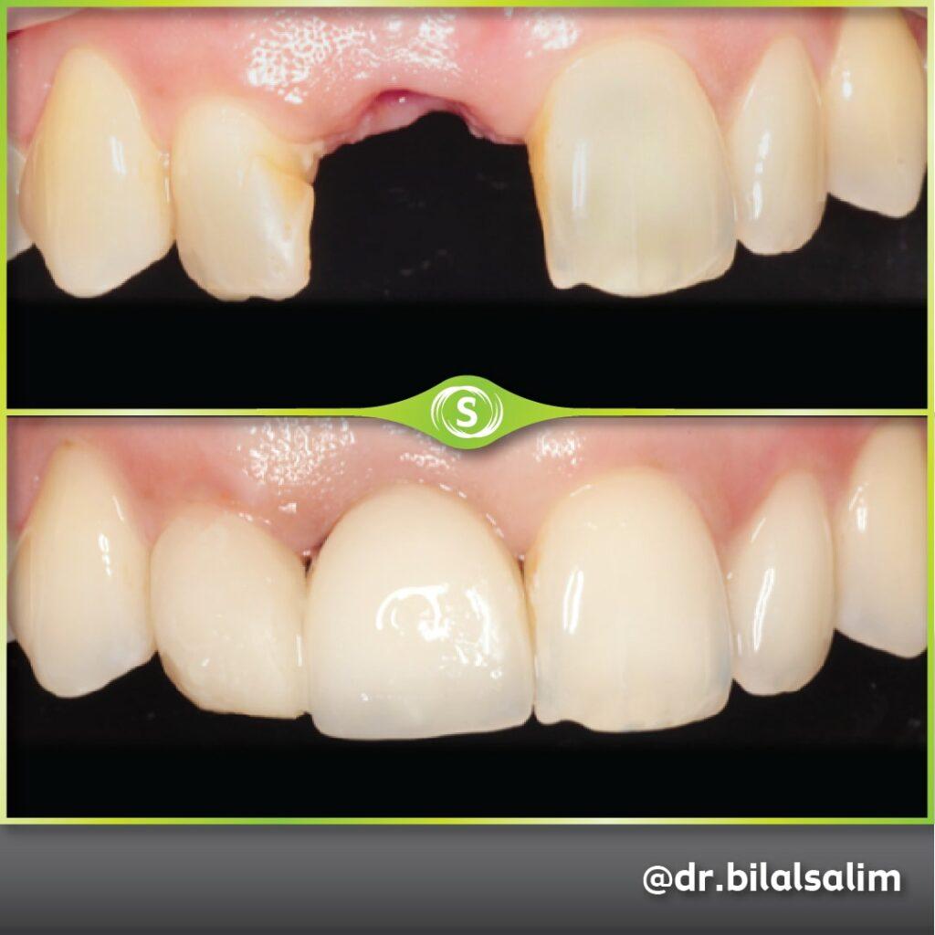 B&A Implant Dr. Bilal Salim