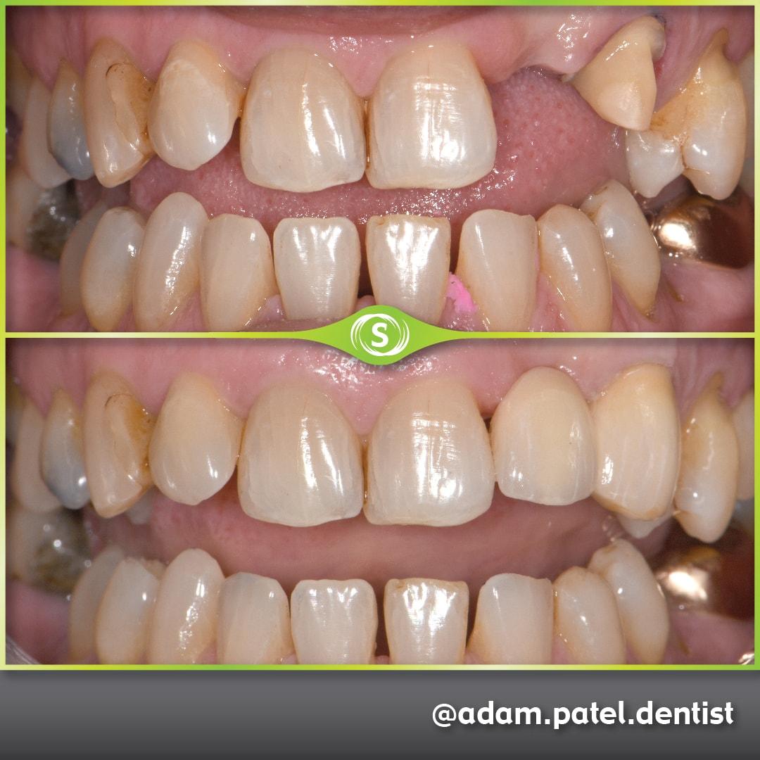 Cosmetic Dentistry - Zirconia Bridge - Dr. Adam Patel