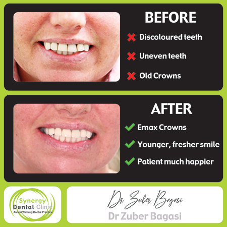 Zuber Bagasi - Before & After Emax Crowns 30