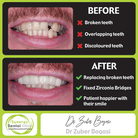 Zuber Bagasi - Before & After Zirconia Bridge 34