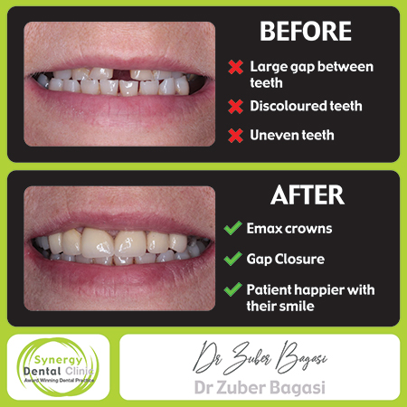 Zuber Bagasi - Before and After Emax Crowns 33