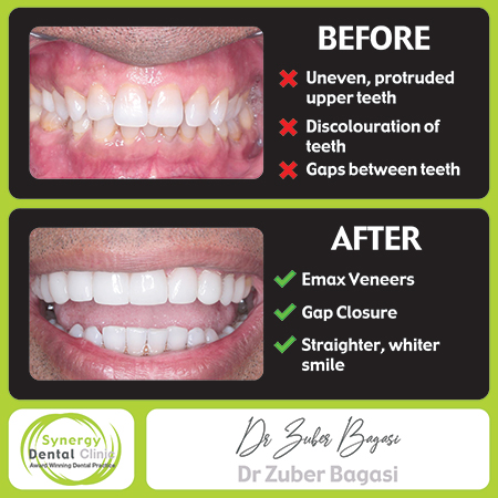 Zuber bagasi - Before and After Emax Veneers 39