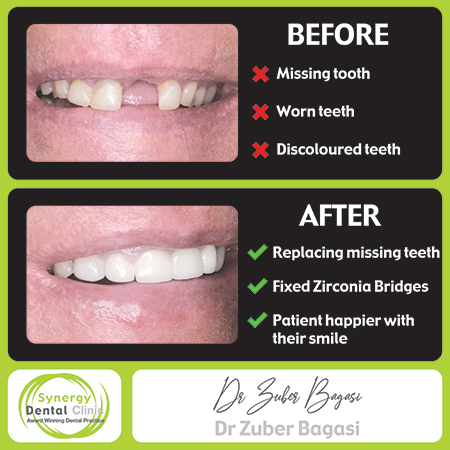 Zuber Bagasi - Before and After Zirconia Bridge41