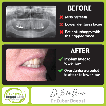 Zuber Bagasi - Implant Retained Overdentures BEFORE & AFTER 3
