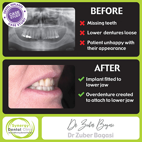 Implant Retained Overdentures BEFORE & AFTER CASE STUDY