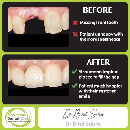 Bilal Salim - Straumann Implant Before & After 6