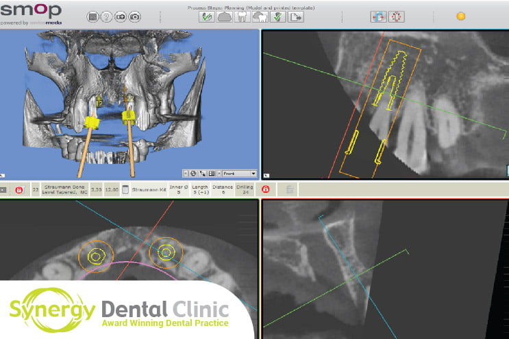 Case Study Will I Have an X-Ray or CT-Scan