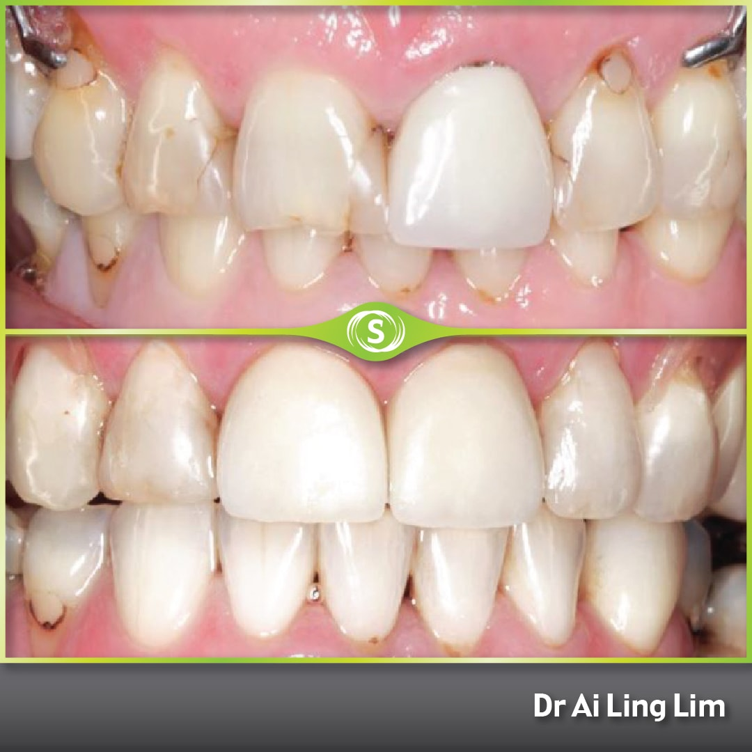 Cosmetic Dentistry - Crowns and Bonding - Dr. Ai Ling Lim