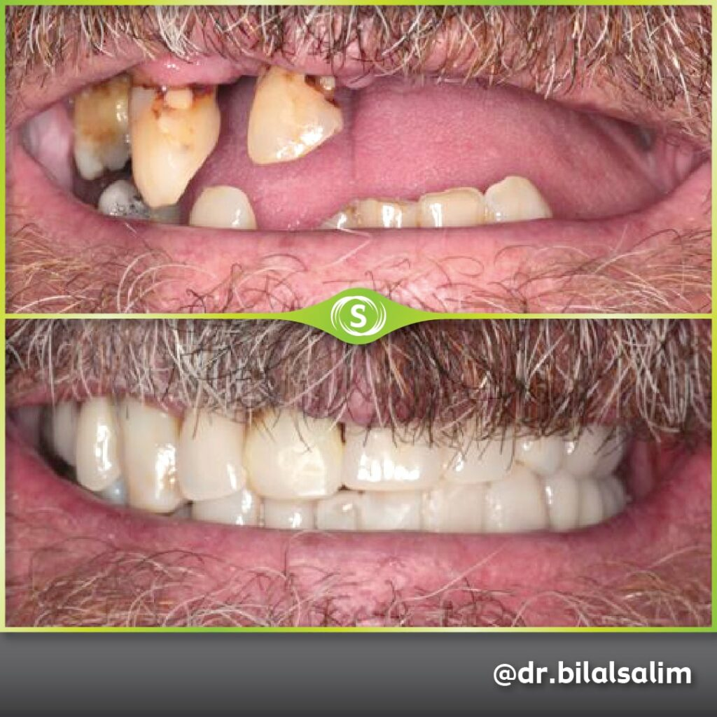 Dentures and Composite Bonding - Dr. Bilal Salim