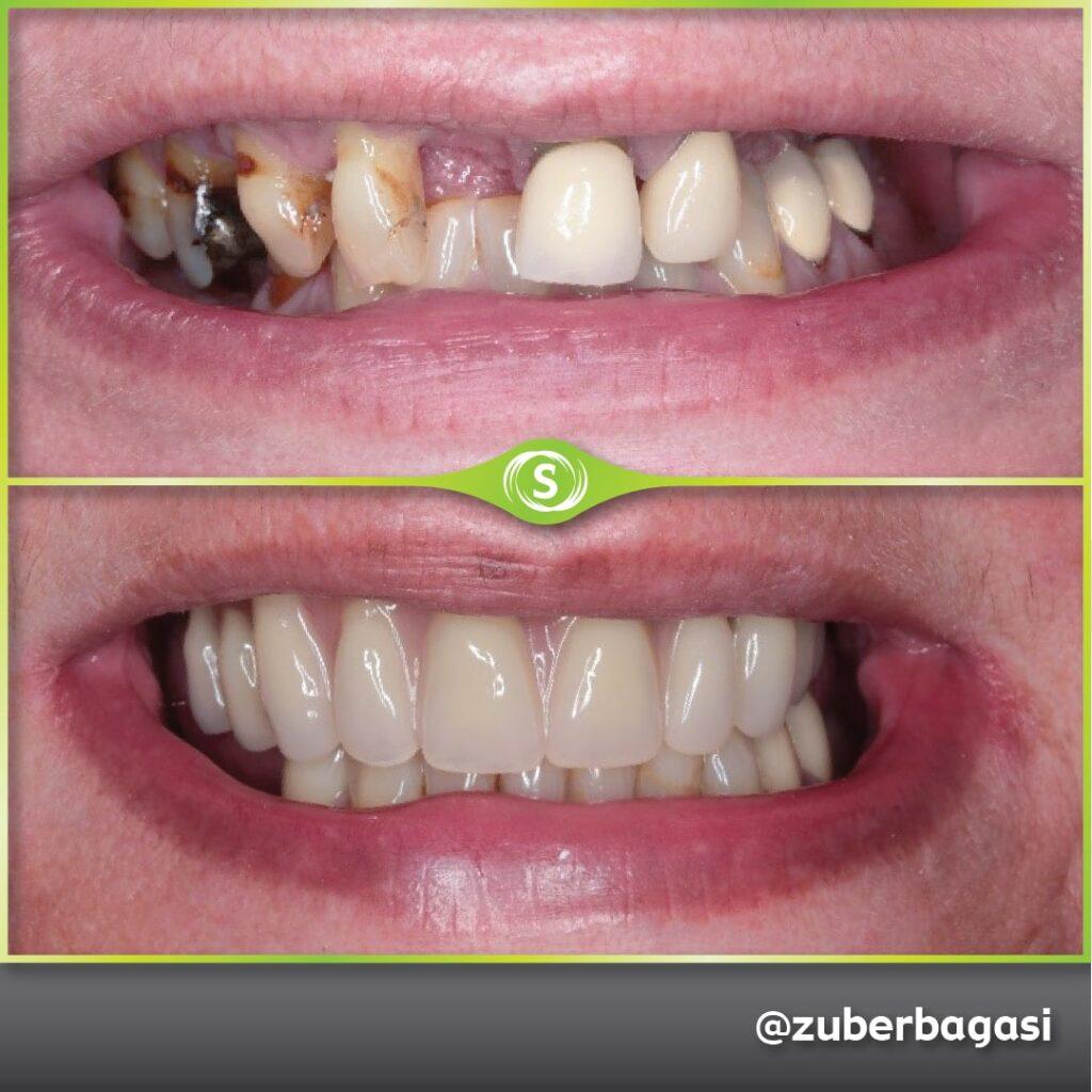 B&A FSD Implants ZB 3a-min