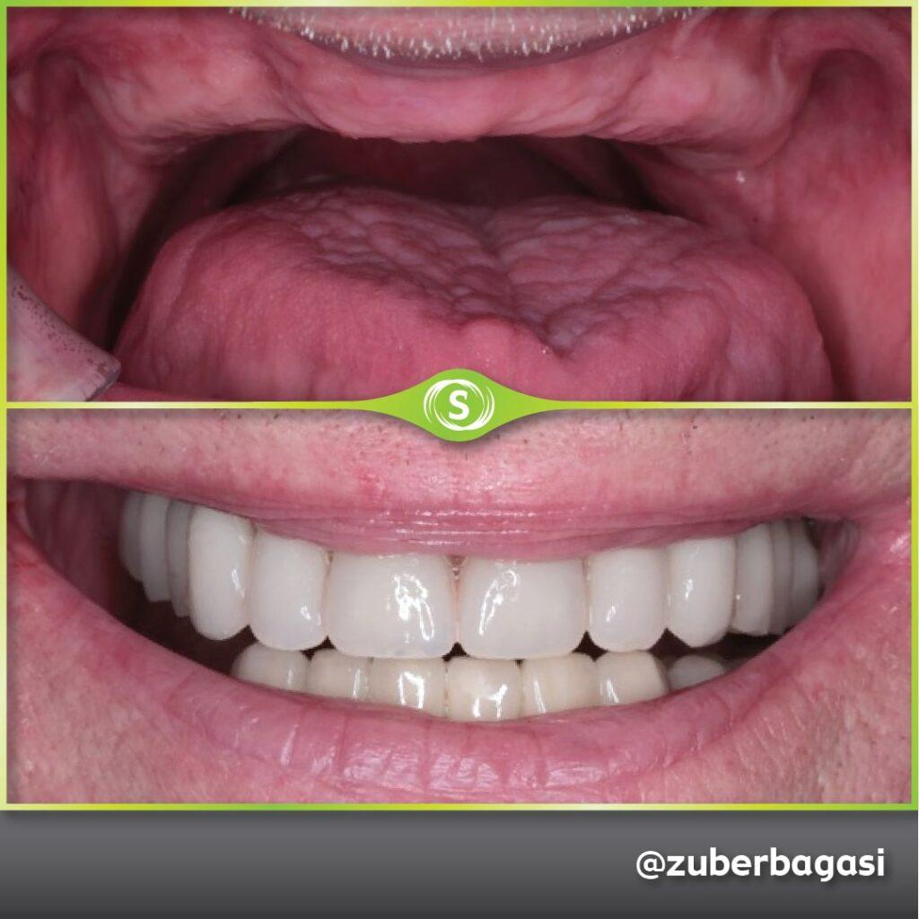 B&A FSD Implants ZB 5b-min