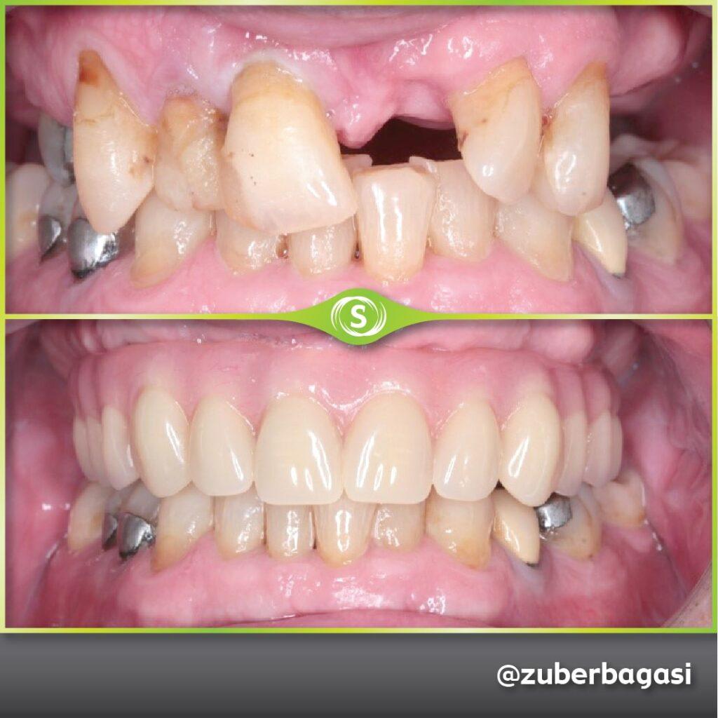 Full Same Day implants - Dr. Zuber Bagasi