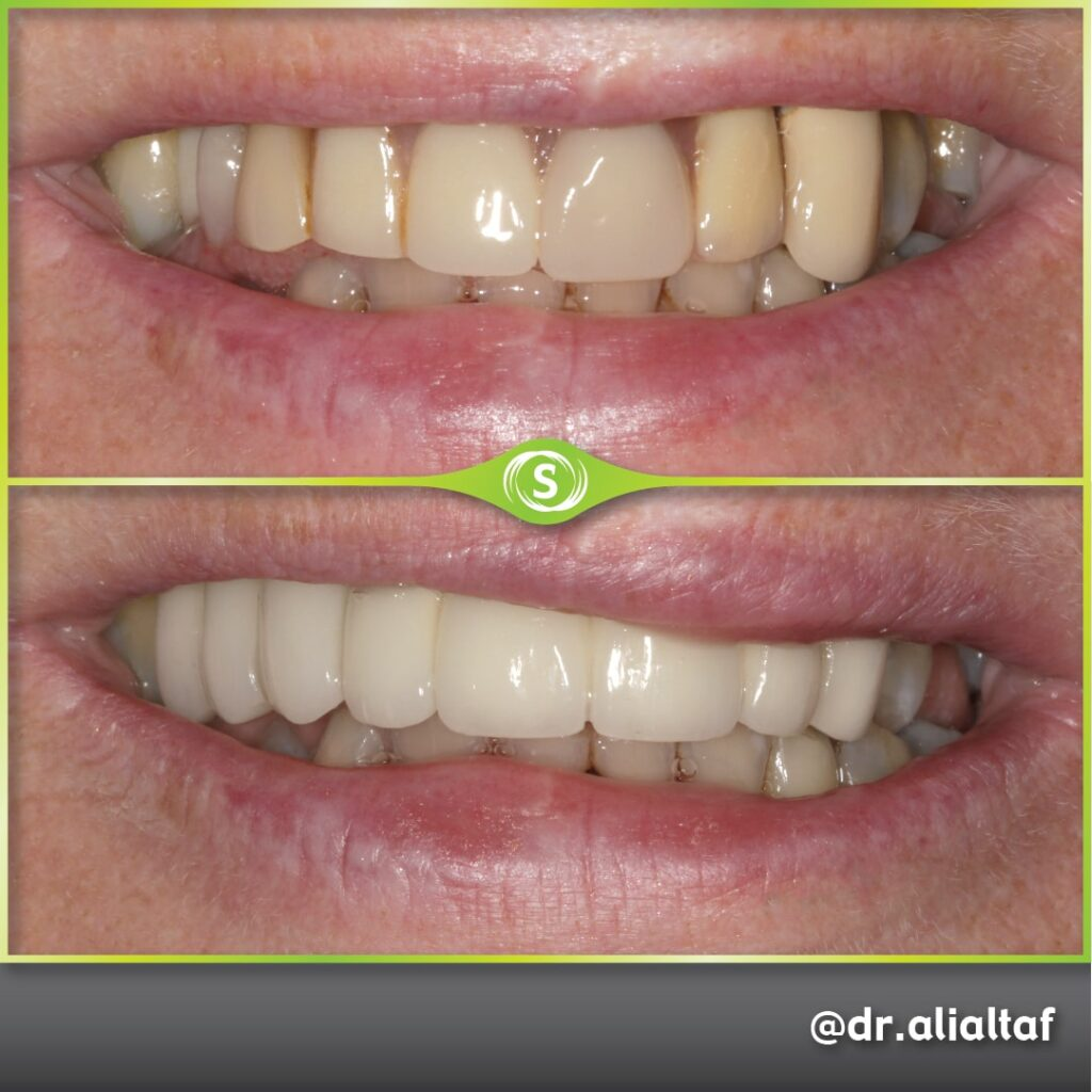 B&A Implant Dr. Ali Altaf