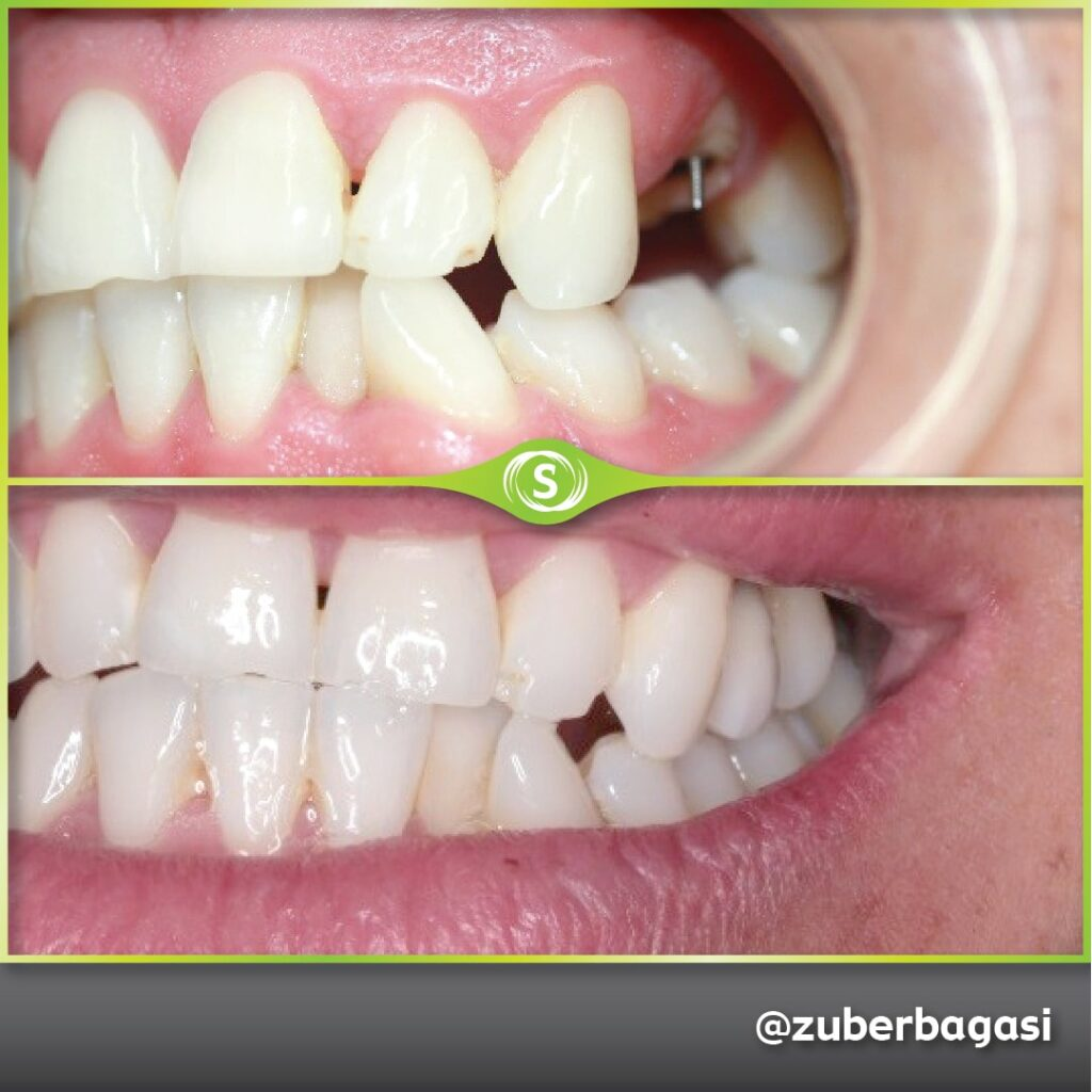 B&A Implant - Dr. Zuber Bagasi