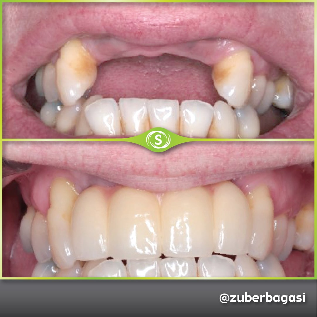 Case Study Dental Implants - 4 Unit Bridge