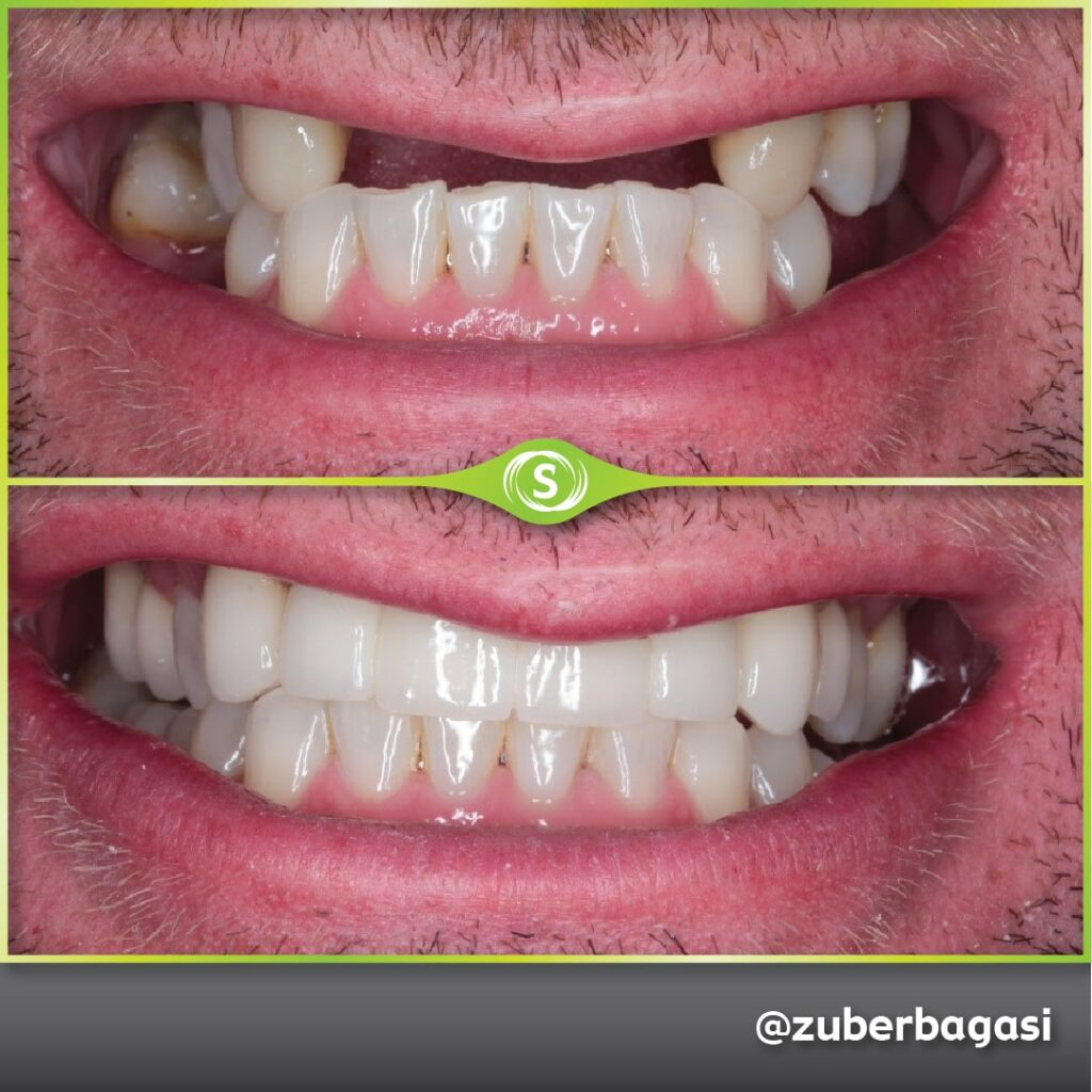 https://synergydental.org.uk/before-and-after/dental-implants/
