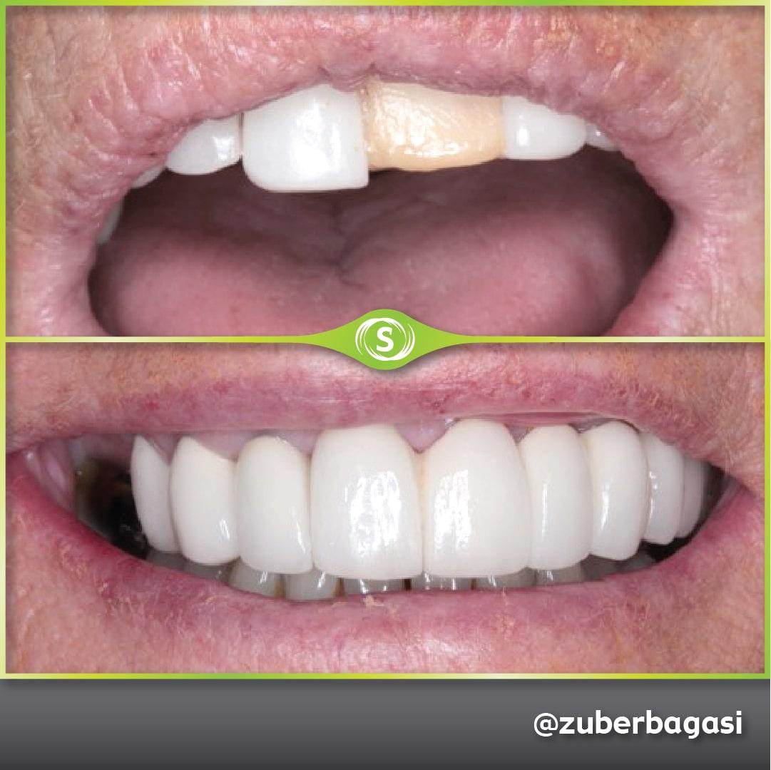 B&A Implants ZB 6b-min (1)