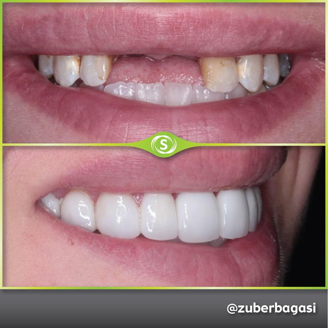 Dental Implants Case - Dr. Zuber Bagasi