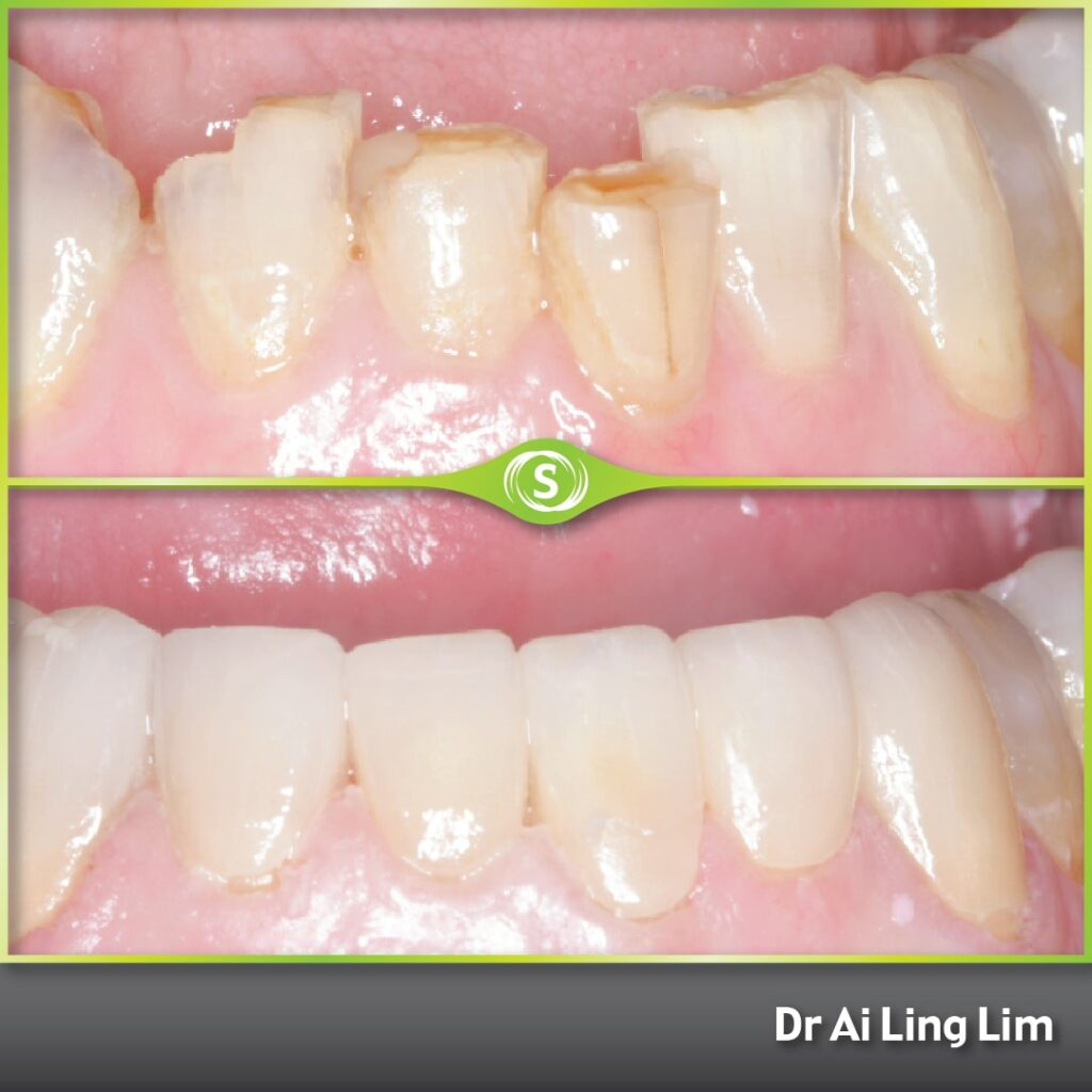 Cosmetic Makeover - Veneers - Dr. Ai Ling Lim