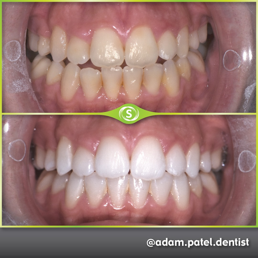 Teeth Whitening - Dr. Adam Patel