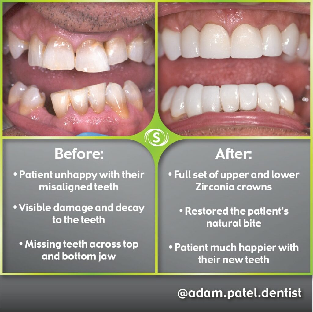 Cosmetic Dentistry - Zirconia Crowns - Dr. Adam Patel