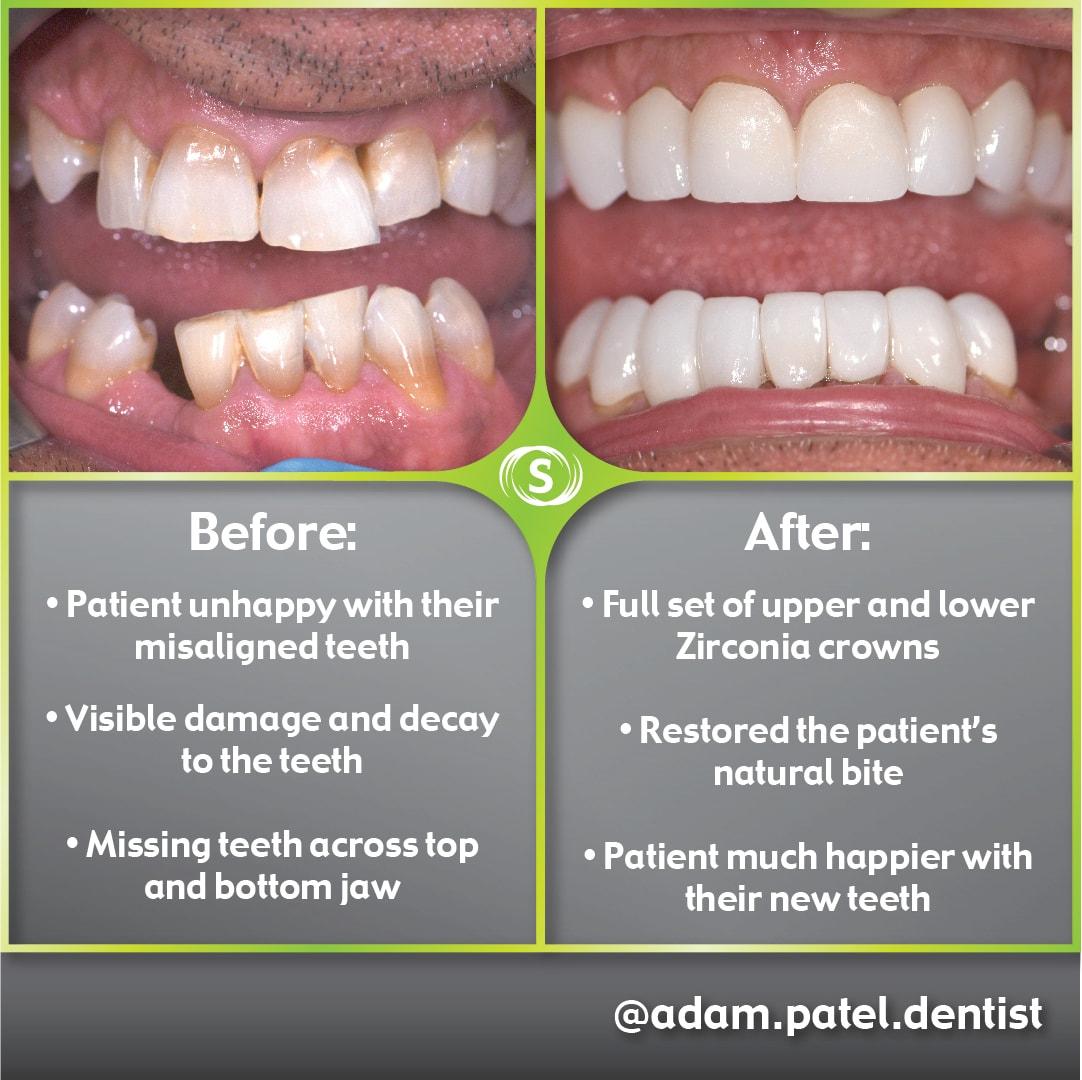 Cosmetic Dentistry - Zirconia Crowns - Dr. Adam Patel