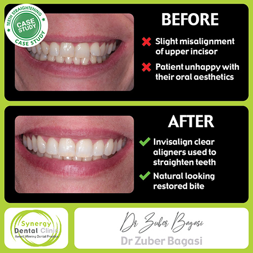 Before and After Teeth straightening CASE STUDY