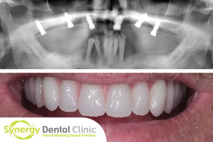 Case Study Fixing Your Smile with Implants