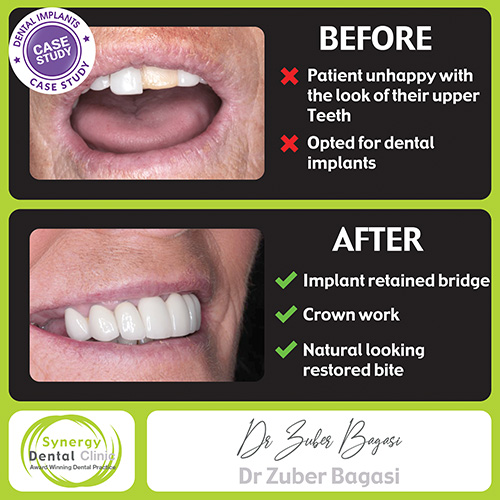 Dental Implants 12 Case Study
