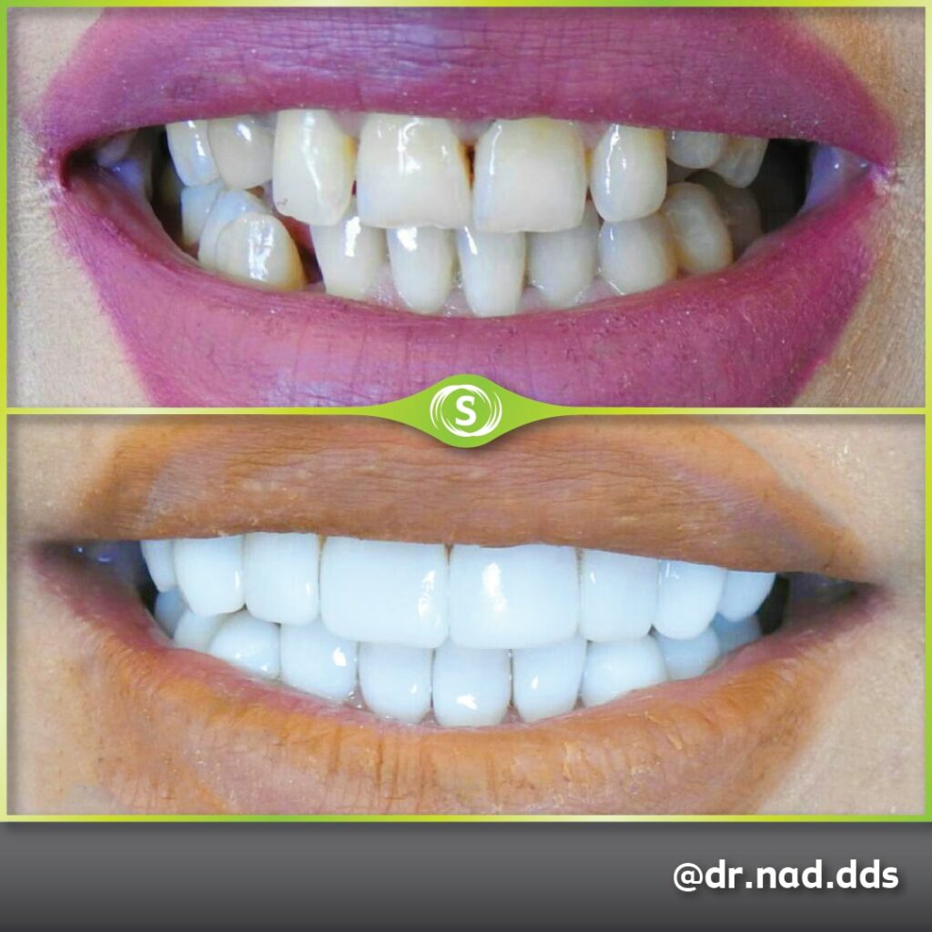 Composite Bonding - Dr. Nader Modarres