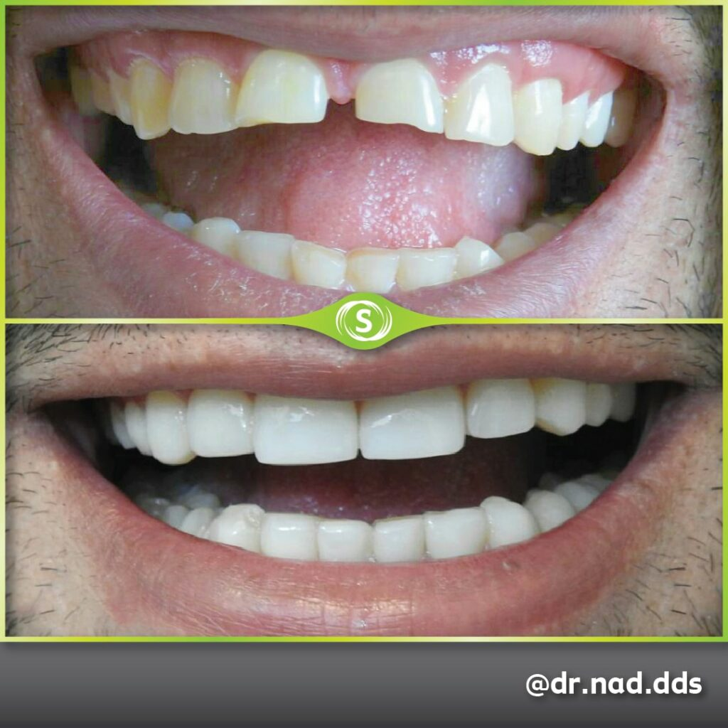 Cosmetic Dentistry Composite Bonding 80 - Dr. Nader Modarres