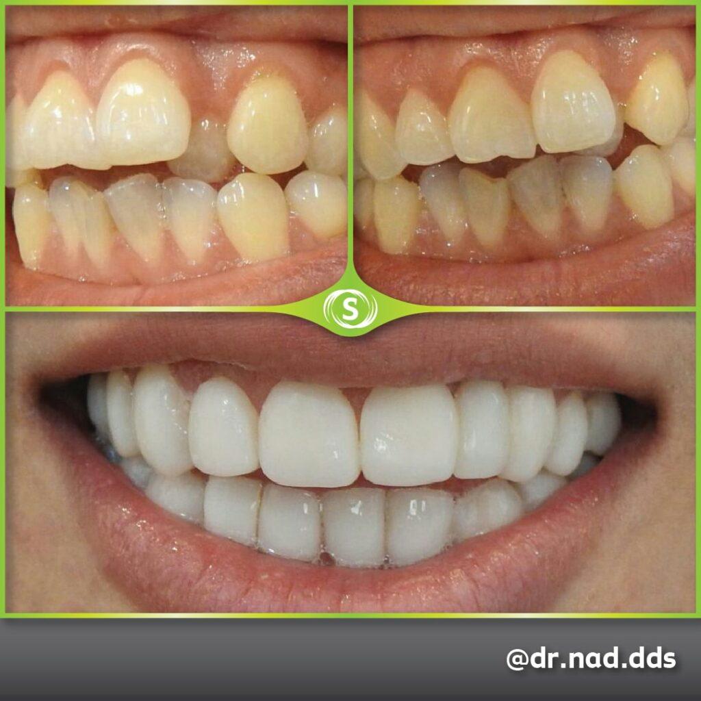 Cosmetic Dentistry Composite Bonding 81 - Dr. Nader Modarres