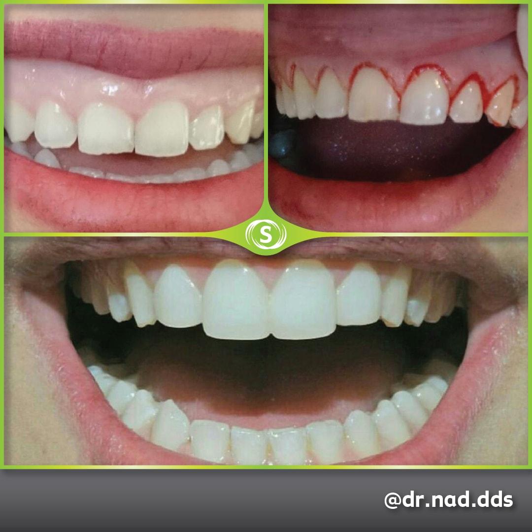 Composite Bonding and Gum lifting Surgery - Dr. Nader Modarres