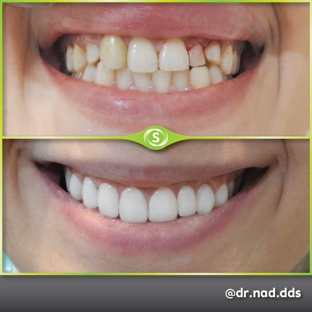 before and after composite bonding - Synergy Dental Clinics