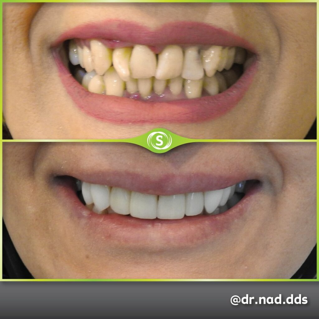 Composite Veneers - Dr. Nader Modarres